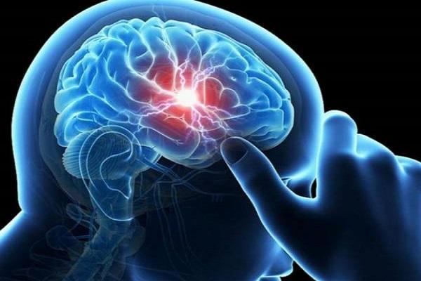 استفاده از نرم افزار برای تشخیص خونریزی مغزی